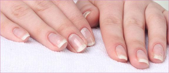 rozdwajanie się paznokci