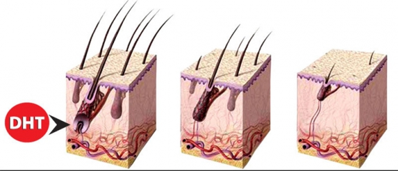 Wpływ DHT na stan włosów