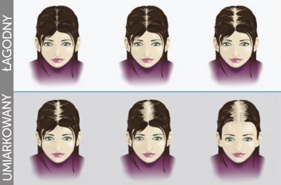 Kobieta- wypadanie włosow