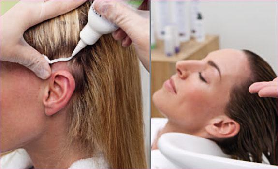 jak dbać o skórę głowy